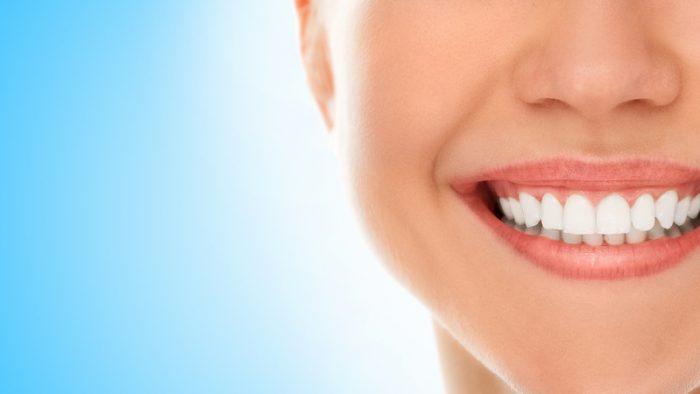 Fundo azul e à frente uma mulher sorrindo. Os dentes estão em evidência e são bem brancos.